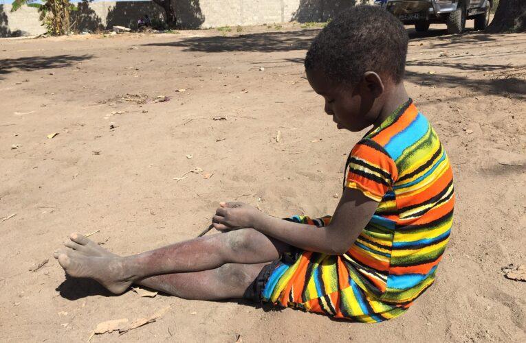 Evento de gala online arrecada fundos para ações humanitárias em Moçambique