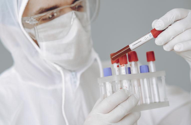 Coronavírus expôs fraquezas de décadas no governo e na sociedade